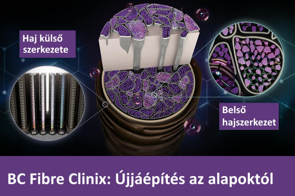 BC Fibre Clinix kezelés akció